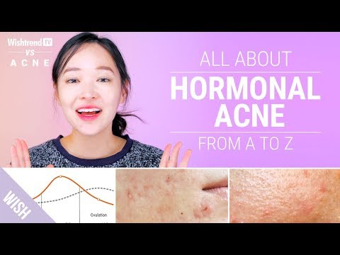 How To Cure Hormonal Acne Lifestyle Skincare Tips Wishtrend Tv Vs Acne Youtube