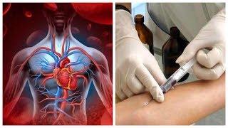 Аутогемотерапія (переливання крові) - особистий досвід, схема, ціна, відгуки