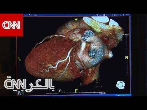 مؤشر من القلب يُنذر بمصابي كورونا الأكثر عرضة للوفاة  - نشر قبل 2 ساعة