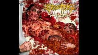 BEGOTTEN - Embalming Process Of Rotten Female Corpses