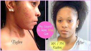 My Clear Skincare Routine: Sensitive Oily Acne Prone Skin + Remove Dark Acne Scars Ft. Luna Mini