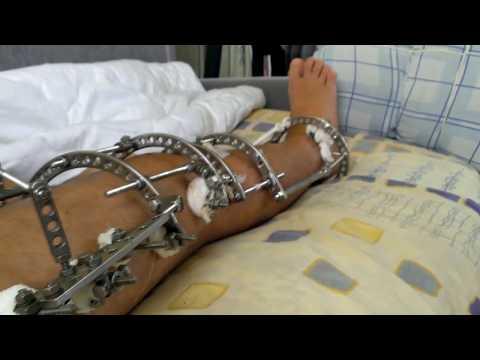 Перелом плечевой кости Причины, симптомы, виды, первая