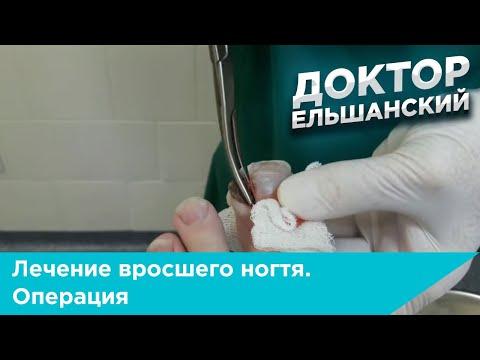 Лечение вросшего ногтя операция