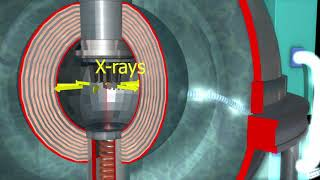 Focus Fusion Direct Conversion to Electricity