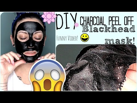 how to get rid of blackheads fast yahoo