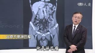 【大愛醫生館】20181128 - 出奇不意淋巴瘤