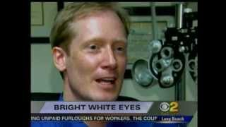 #1 Secret for White Eyes - How to Make Your Eyes Whiter with I-BRITE No more Red Blood Shot eyes