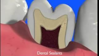 Dentist Sydney | Sydney Dentist Clinic | Sydney Dentist Thumbnail