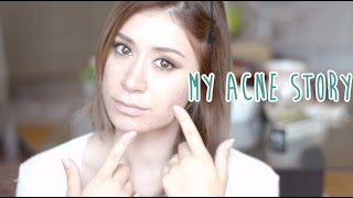 My Acne Story - Cystic Acne and Accutane