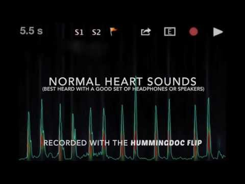 NORMAL HEART SOUNDS