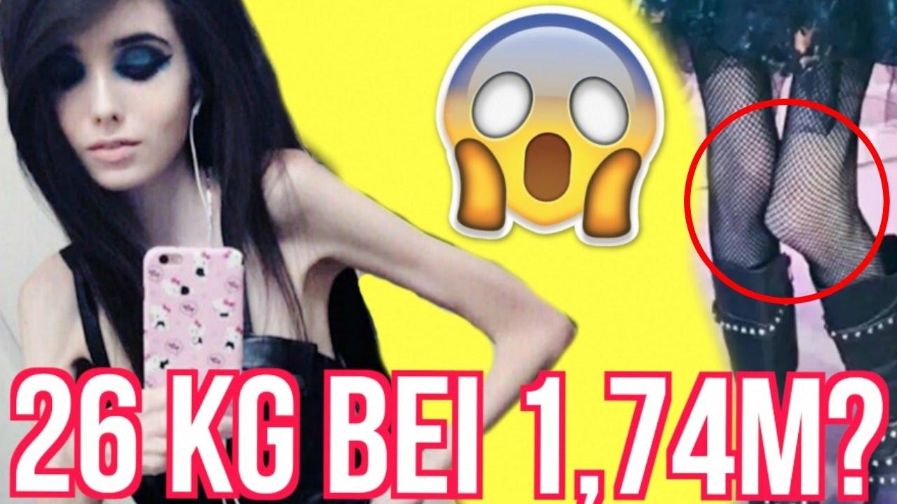 MAGERSUCHT Youtuberin HUNGERT Sich Zu TODE YouTube