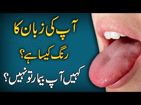What Your Tongue Color Reveals About Your Health ? || Health Tips In Urdu