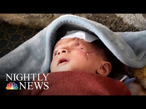 Syria's Wounded Are Not The Only War Casualties | NBC Nightly News