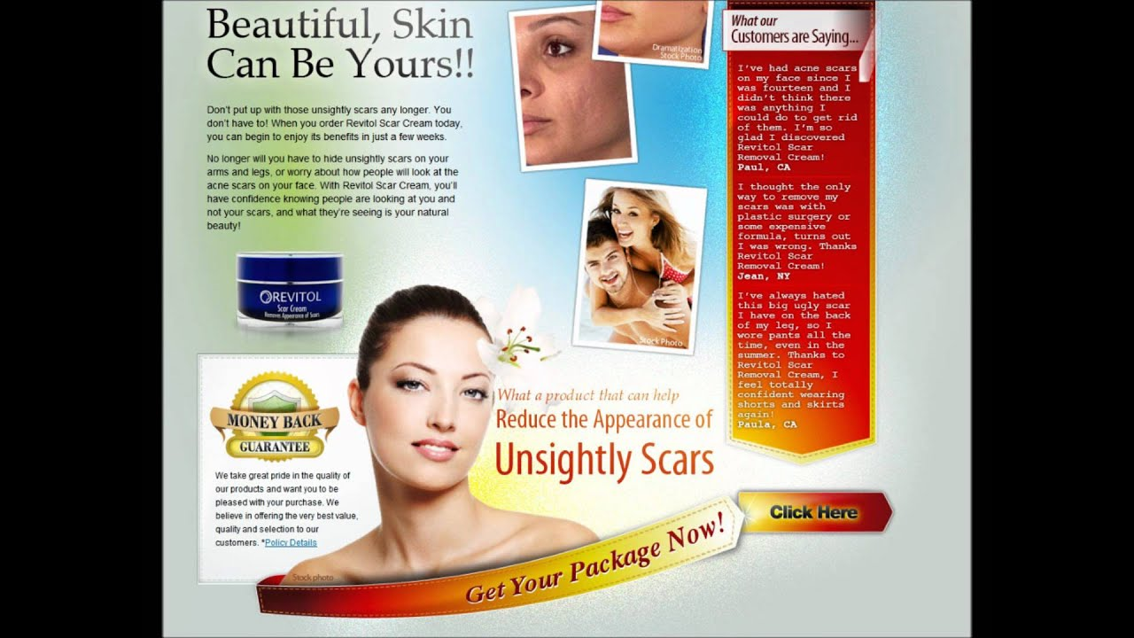 Revitol How To Get Rid Of Scars Youtube