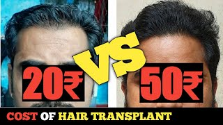Normal FUE vs Advance FUE || BIG FUE Technique hair transplant || Sourav Mridha