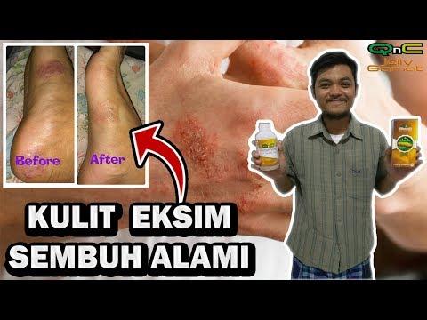 cara-menyembuhkan-penyakit-kulit-eksim-agar-tidak-kambuh-kembali---herbal-qnc-jelly-gamat