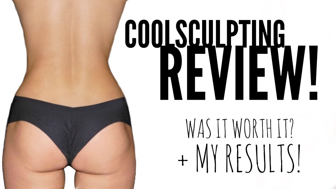 on coolsculpting detailed review
