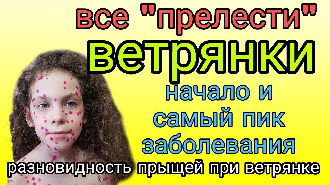 Болеем ветрянкой// МНИТЕЛЬНЫМ И СЛАБОХАРАКТЕРНЫМ НЕ СМОТРЕТЬ!!!// В конце-КОРОЛЕВА ВЕТРЯНОК