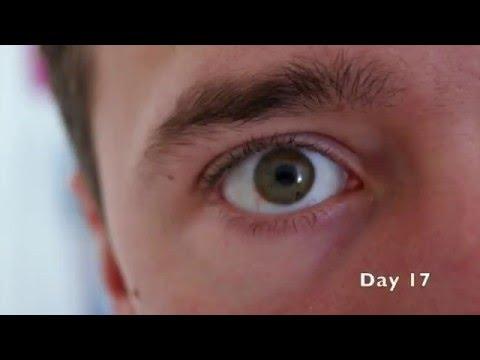 Subconjunctival Hemorrhage Timelapse Burst Blood Vessel In Eye