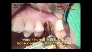 植牙implant sca kit case 2