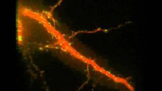 BDNF-treated Neuron