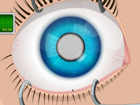 OPERATE NOW : EYE SURGERY | PLAY EYE SURGERY GAME ONLINE