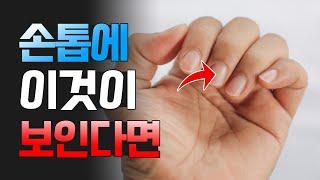 손톱에 이것 보인다면 꼭 확인해보세요!