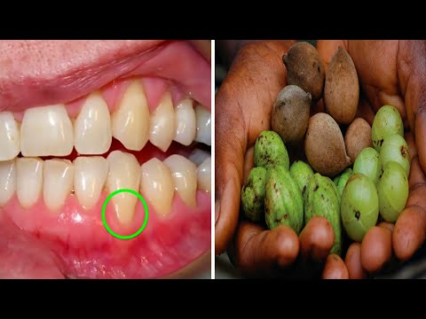 These 3 Fruits Can Fix Most of Your Gum and Teeth Issues