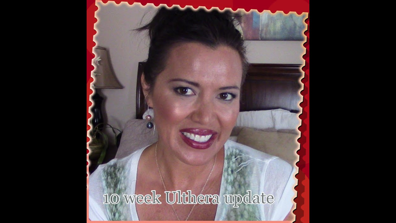 10 WEEK ULTHERA (ULTHERAPY) UPDATE by Denim Vixen