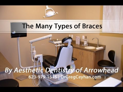 The Many Types of Braces
