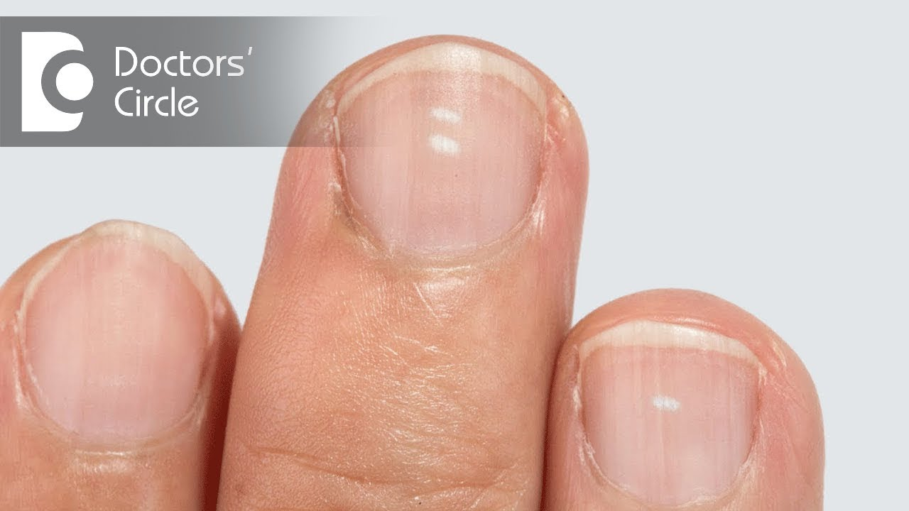 Are White Spots On Nails Caused Due To Calcium Deficiency Dr Aruna Prasad