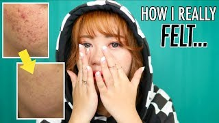 HOW I GOT RID OF MY ACNE + how it honestly affected me