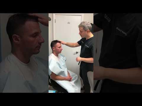 ARTAS iX Robotic FUE Procedure with Dr. Wolfeld Part 1