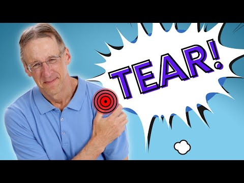 Top 3 Signs Of A Rotator Cuff Tear Youtube