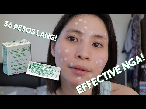 how-to-dry-pimples-in-3-days-|-affordable-acne-treatment