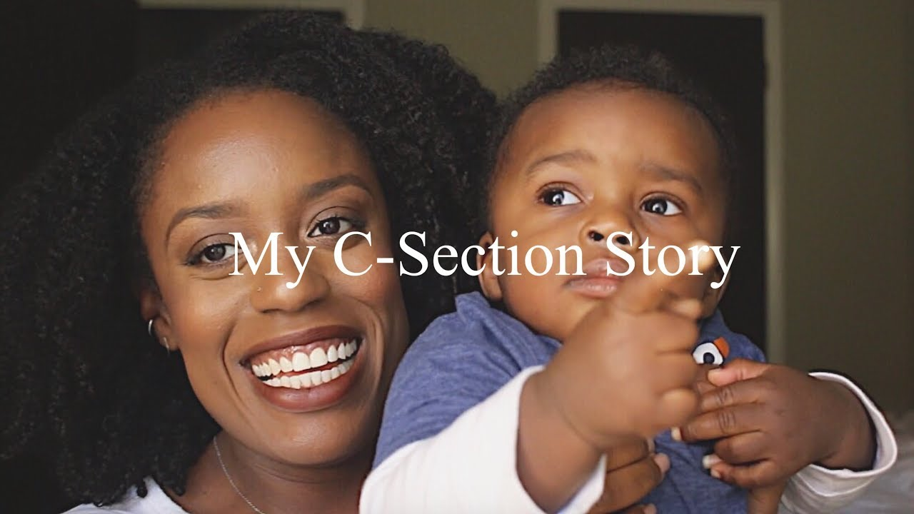 Part 2 - My C Section Story | Pregnancy after Fibroid and ...