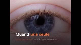 Paupière gonflée - Causes et solutions - Ooreka.fr