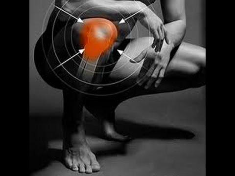 Exercises vs Surgery For Meniscus Tear | Chiropractor Mechanicsville &  Richmond VA