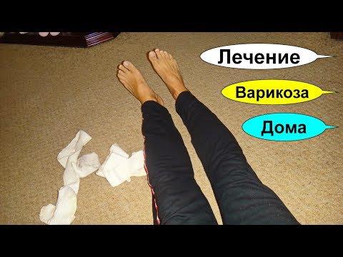 Вены на ногах. Лечение варикоза. Закупорка сосудов. Тромбы. Целебный сбор растений