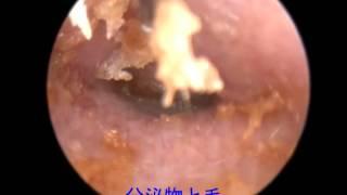 フレンチブルドッグの内耳炎(左耳) French bulldog's Internal otitis...