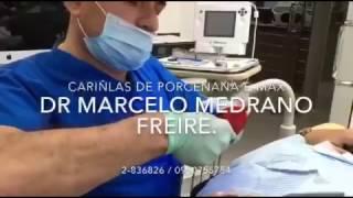Samborondon Dental Center Video 2016 11 10