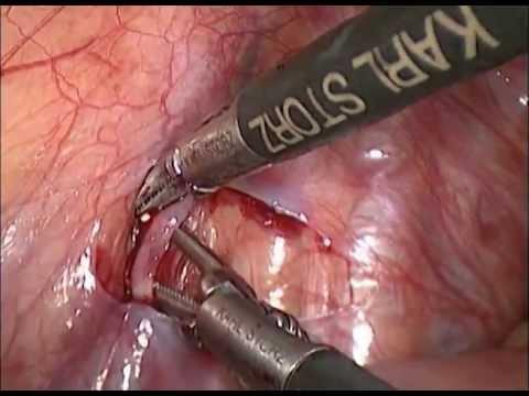 Varicocelectomía izquierda - YouTube