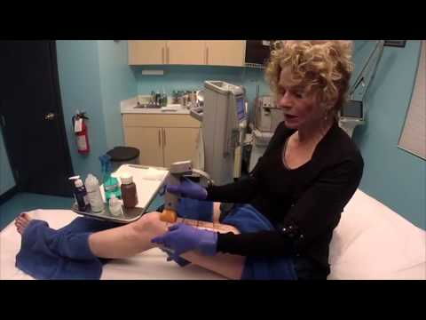 How to Tighten Saggy Skin on Legs Thermage