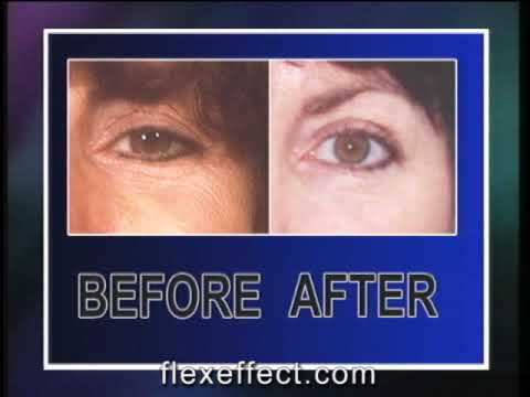 Facial Exercise:  FlexEffect Facialbuilding, Medical Recruiter and Hospital Administrator's Reports