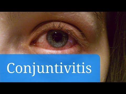 Conjuntivitis vírica, alérgica y bacteriana: síntomas y tratamiento