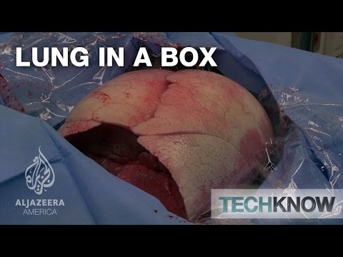 Lung in a Box - TechKnow