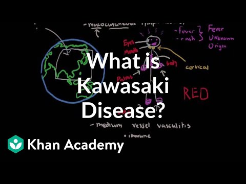 What is Kawasaki