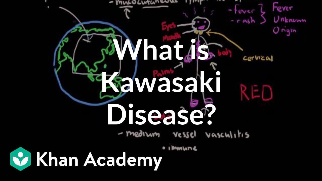 What is Kawasaki disease? | Circulatory System and Disease | NCLEX-RN | Khan Academy