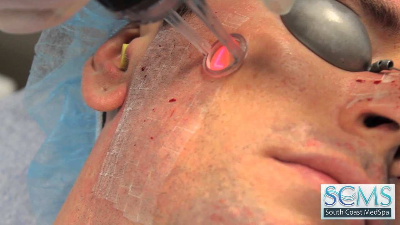 How to use the laser for acne - removal, treatment