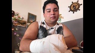Brian perdió la mano en el supermercado donde trabaja cuando lo mandaron a la picadora de carne